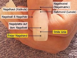 Freier Nagelrand und Smile Linie